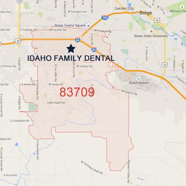 Serving Southwest Boise - 83709 • Idaho Family Dental